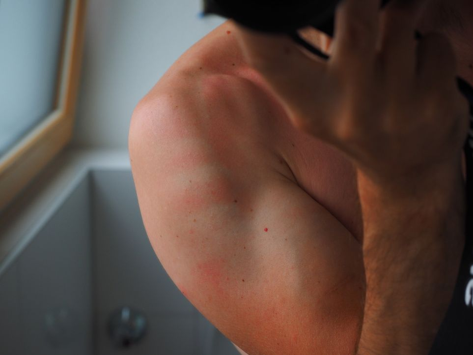 sunburn-2117350_1920