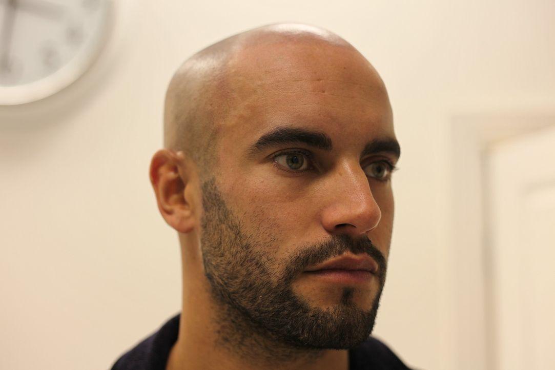 Das Model Adam hat eigentlich ein perfektes Leben, doch er leidet unter akutem Haarausfall. Eine neue Tattowier-Methode ist seine letzte Chance ... - Bildquelle: Remarkable 2015