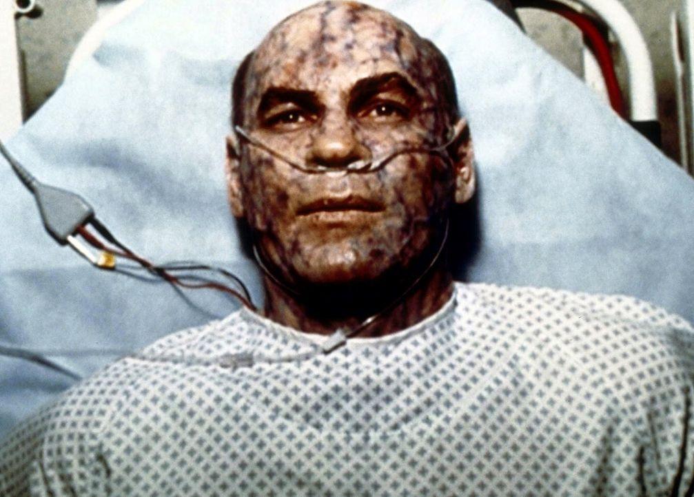 Skinner (Mitch Pileggi) ist aufgrund politischer Hintergründe mit einem High-Tech-Gift infiziert worden. - Bildquelle: TM +   2000 Twentieth Century Fox Film Corporation. All Rights Reserved.