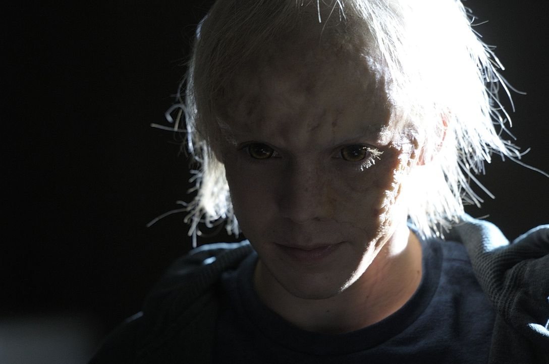 Was ist nur mit Kenny (Connor Price) geschehen? - Bildquelle: Phillipe Bosse 2013 B.H. 2 Productions (Muse) Inc. ALL RIGHTS RESERVED.