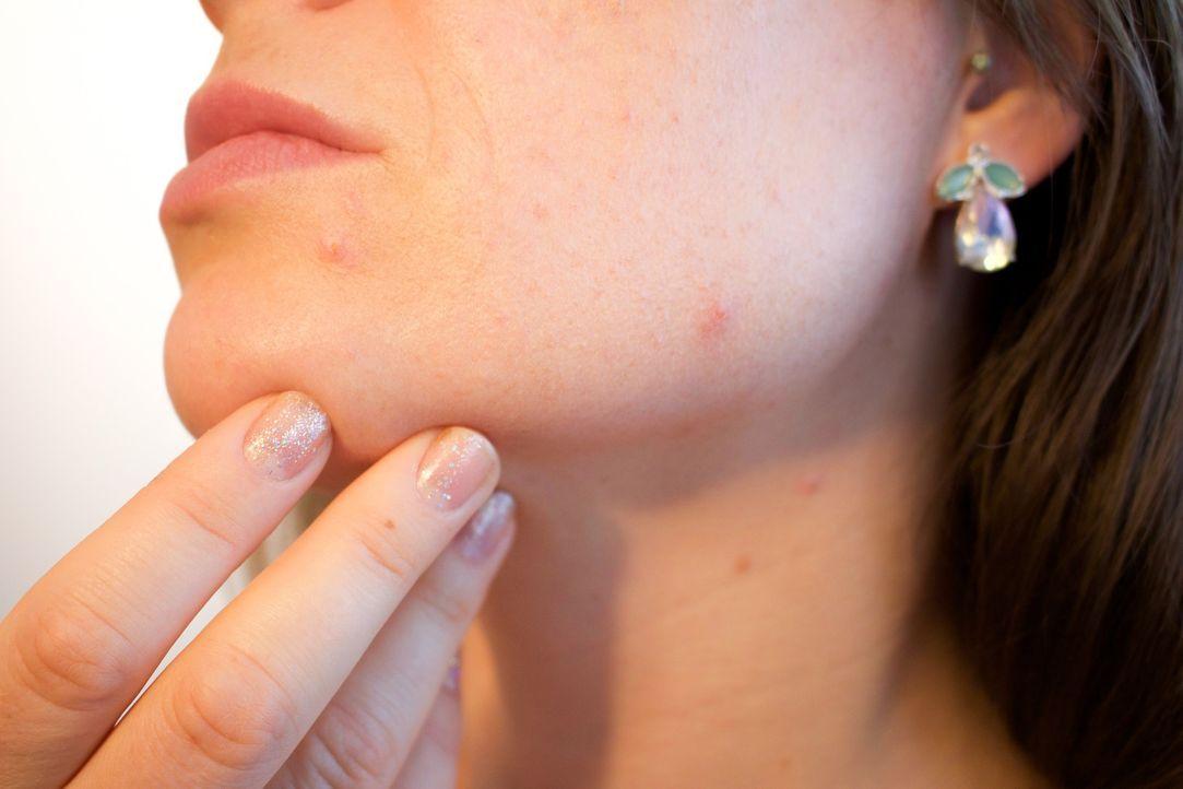 9. Deine Haut verschlechtert sichIm Schlaf schüttet der Körper Hormone aus, ... - Bildquelle: Pixabay