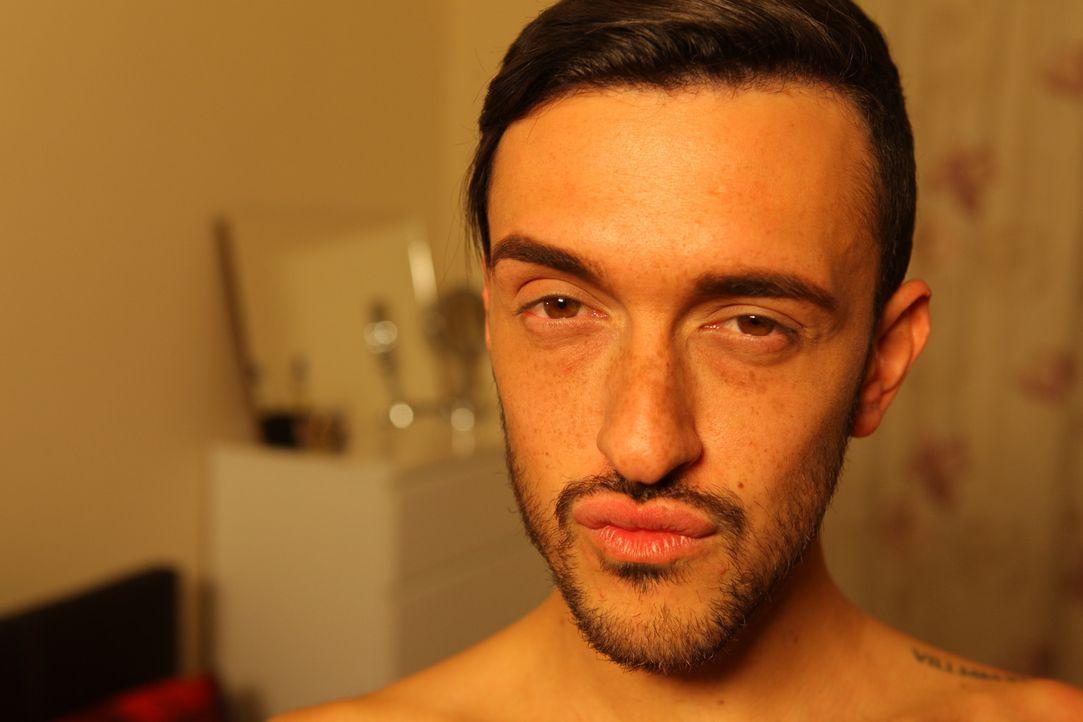 Es war noch nie so einfach Gesicht und Körper zu verändern: Dean (Bild) tat alles für volle Lippen, aber jetzt bereut er seinen Eingriff. Auch sein... - Bildquelle: Remarkable 2015