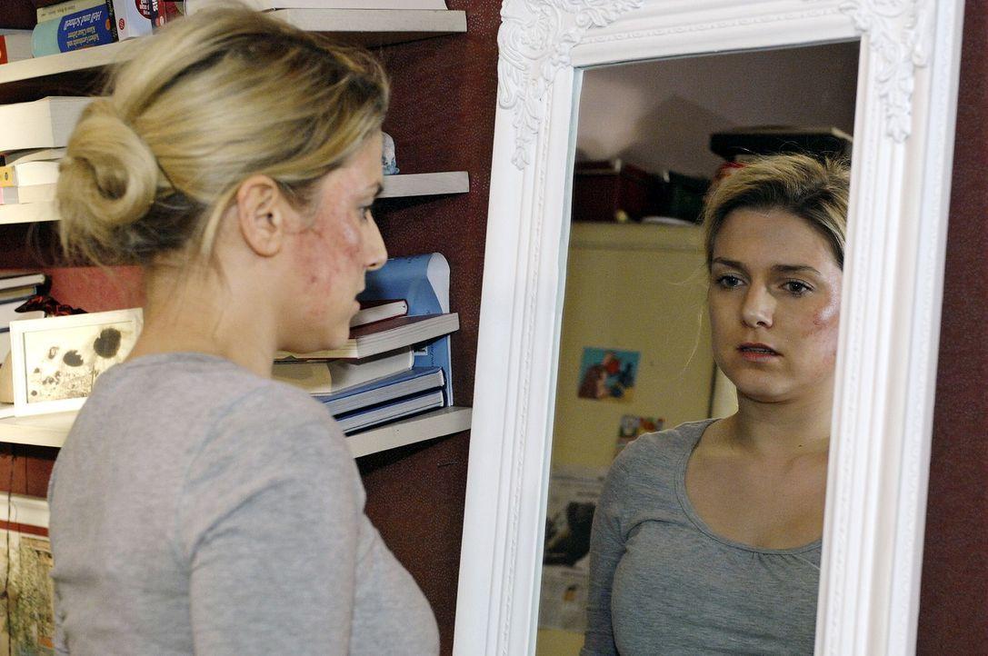 Anna (Jeanette Biedermann) glaubt, sich alleine von der Pillensucht kurieren zu können. - Bildquelle: Oliver Ziebe Sat.1