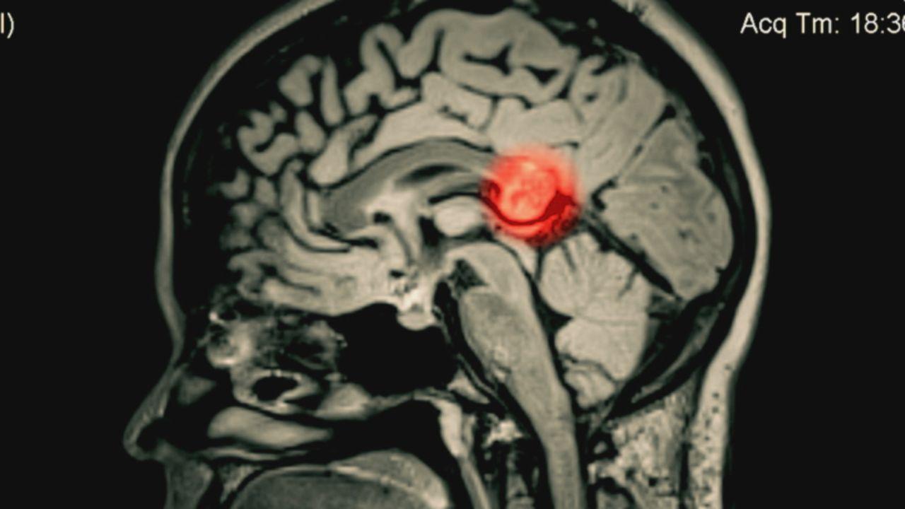 """Heute beleuchtet das Team von """"Wunder der Wissenschaft"""" den Fall einer Frau, deren Zwilling in ihrem Gehirn entdeckt wurde. - Bildquelle: Jenna Satariano Jenna Satariano"""