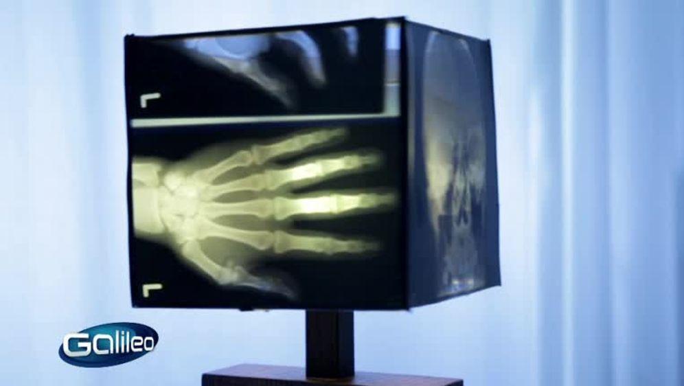 Silber aus Röntgenbild