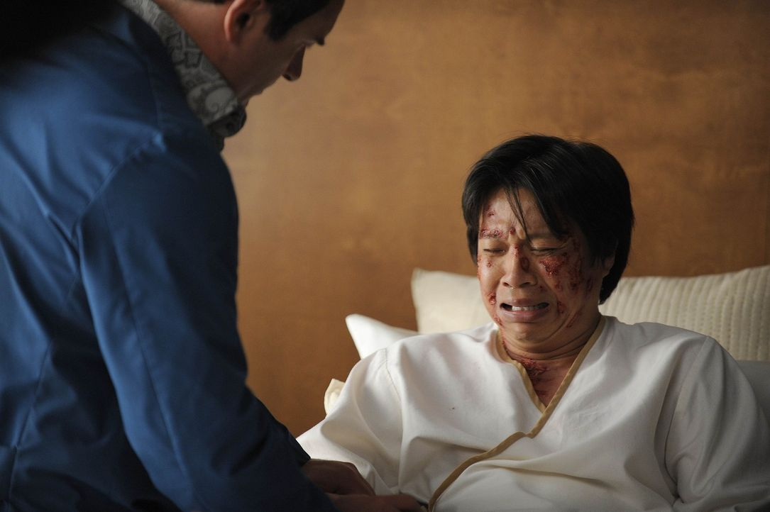 Budi (Chi-Muoi Lo, r.), ein asiatischer Patient, hat viele hornartige Wucherungen auf der Haut und möchte sich diese von Christian (Julian McMahon,... - Bildquelle: Warner Bros. Entertainment Inc. All Rights Reserved.
