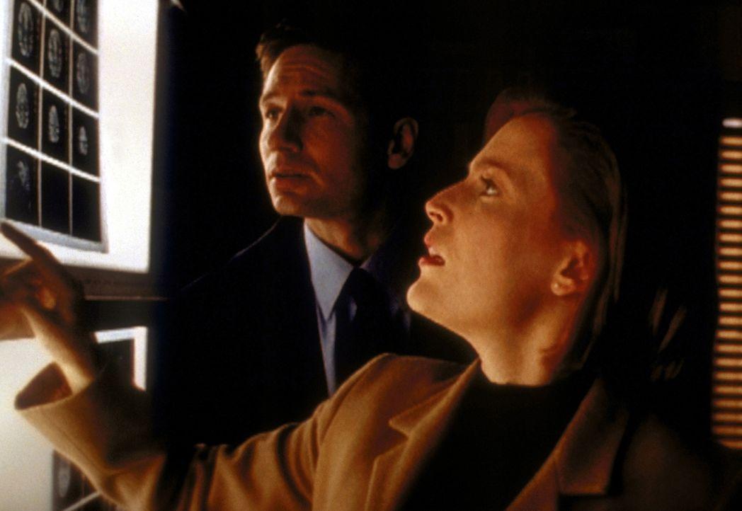 Anhand von Röntgenaufnahmen erklärt Scully (Gillian Anderson, r.) Mulder (David Duchovny, l.), wie der Teenager starb. - Bildquelle: TM +   2000 Twentieth Century Fox Film Corporation. All Rights Reserved.