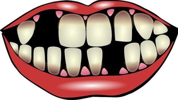 Cassie After Dentist