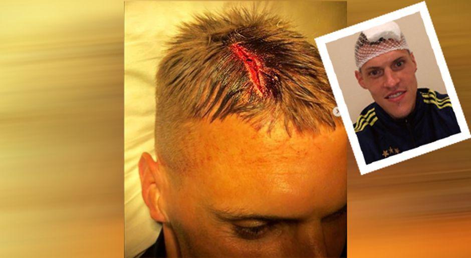 Nach Zusammenprall: Martin Skrtel zeigt Horrorverletzung - Bildquelle: martin37skrtel/instagram