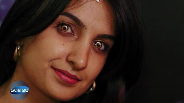 Bildgeschichte: Kontaktlinsen Bling-Bling Indien
