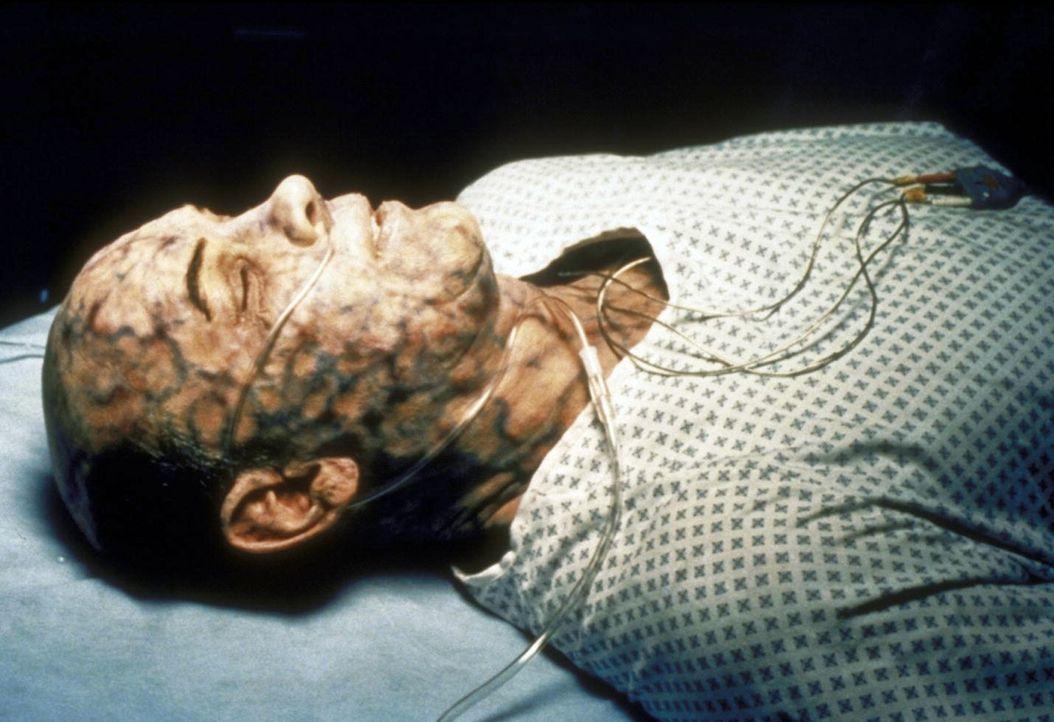 Aufgrund politischer Hintergründe ist Skinner (Mitch Pileggi) mit einem High-Tech-Gift infiziert worden ... - Bildquelle: TM +   2000 Twentieth Century Fox Film Corporation. All Rights Reserved.