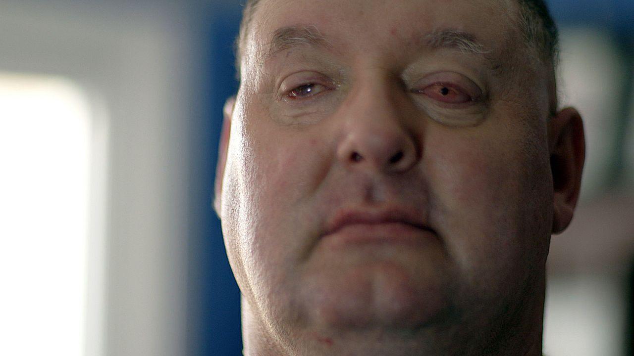 Ian Tibeets wurde einer seiner Zähne in seine Augenhöhle implantiert. Sie dient als Basis für eine Linse. - Bildquelle: BBC
