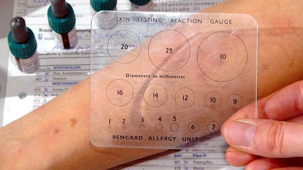 Allergen-Test_dpa - Bildfunk