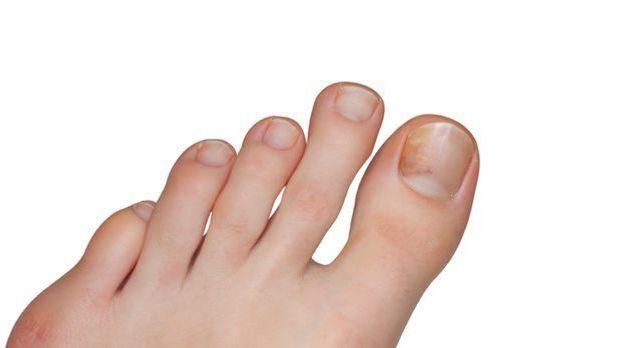 Schon eine geringfügige Verfärbung des Nagels kann auf Nagelpilz hindeuten.