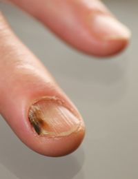 Auch an der Hand kann Nagelpilz auftreten. Hier ist deutlich erkennbar, wie s...